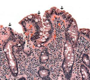 Le diagnostic de la maladie coeliaque