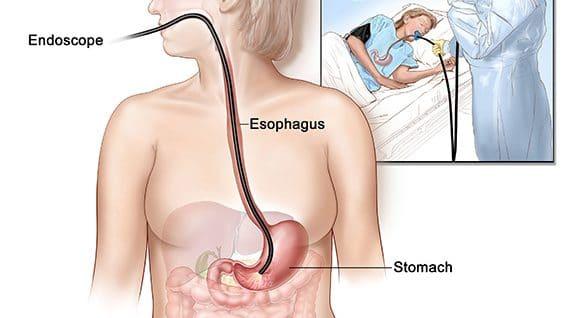 Gastro-endoscopie avec biopsie